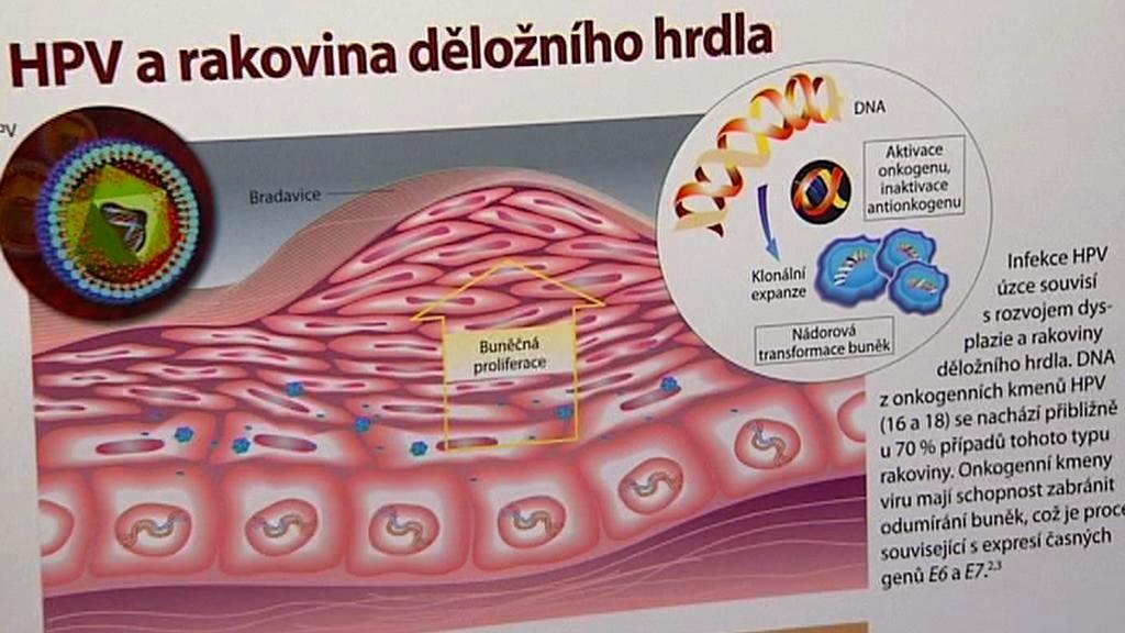 Papillomavirus ockovani