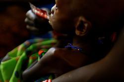 Podvyživené dítě v Jižním Súdánu