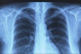 Plíce s plicní fibrózou