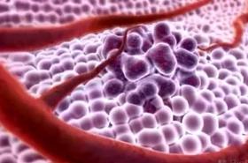 Nádorové buňky