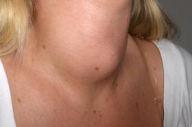 Porucha štítné žlázy