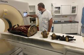 Vyšetření černé Madony ve Fakultní nemocnici u svaté Anny