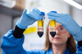 Vakcína vyvíjená Oxfordskou univerzitou a společností AstraZeneca