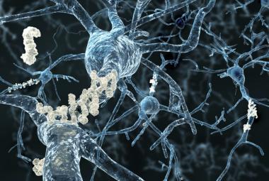 Lidský mozek umí tvořit nové buňky sto let. Objev může pomoci léčit Alzheimerovu nemoc