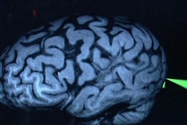 Kde je v mozku uloženo naše Já? Čeští vědci na stopě