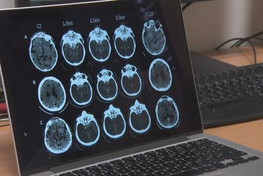 Mladý neurolog z Brna vymyslel, jak přesněji a včas diagnostikovat mrtvici