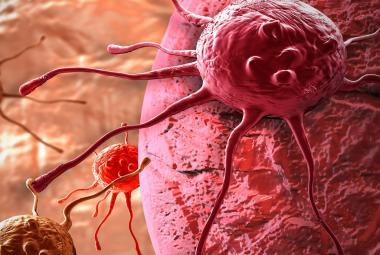 Proti rakovině pomáhá laciný lék na alkoholismus. Průlomový mechanismus objasnili čeští vědci