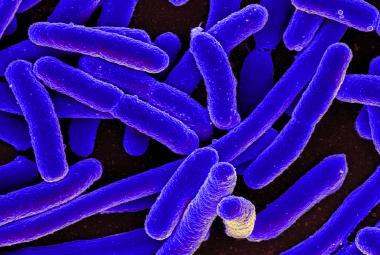 Týden ve vědě: Od  oranžového sněhu po nesmrtelné bakterie