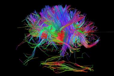 Příchod epilepsie se nedá předpovědět. Pomoci však může genová terapie