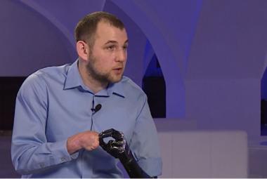 Bezruký vědec si vyrobil robotické protézy. Teď do nich chce umělou inteligenci