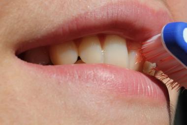 Blíží se konec plomb? Vědci testují gel, pomocí kterého se zubní sklovina dokáže sama obnovit