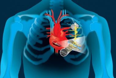 Energie lidského srdce by mohla pohánět elektronické přístroje. Třeba kardiostimulátory