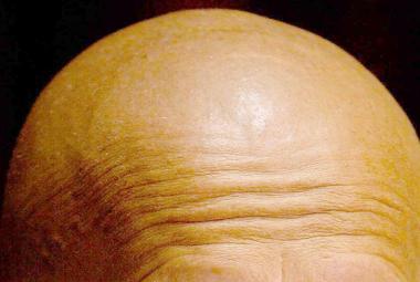 Znečištěné ovzduší může vést k plešatosti, naznačila studie
