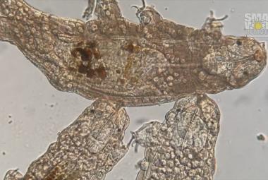 Krása mikrosvěta. Soutěž o nejlepší záběry z mikroskopu vyhrálo video ohroženého korálu