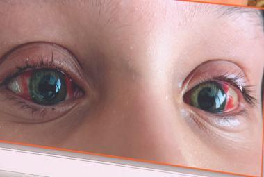 Covid může u dětí výjimečně vyvolat zánětlivé onemocnění, projevuje se třeba zarudlýma očima