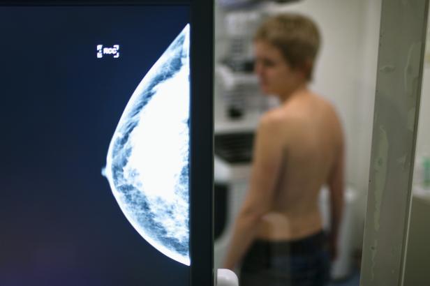 U žen po porodu hrozí vyšší riziko rakoviny prsu než u bezdětných, tvrdí nová studie