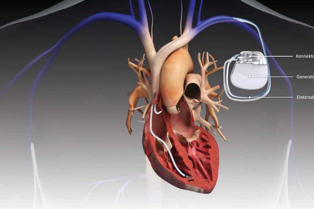 Současné kardiostimulátory jsou odolné vůči hackerům. Rizikem však mohou být elektromobily