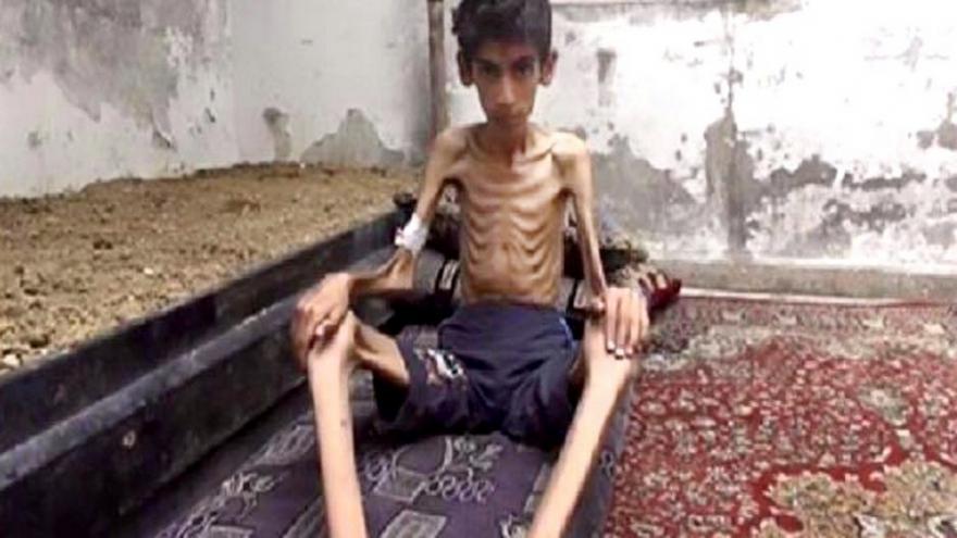Video Lidé, kteří umírají hlady v syrské Madáji, se dočkají pomoci