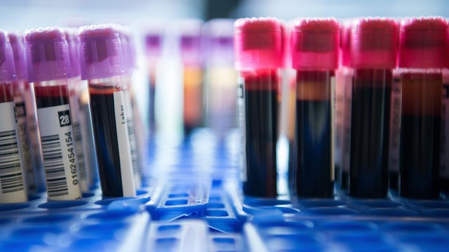 Antibiotika a bolest kloubů