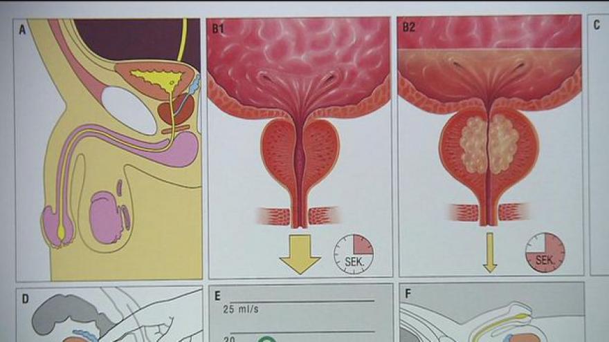 Video Zvětšená prostata trápí řadu mužů, do ordinací se ale nehrnou