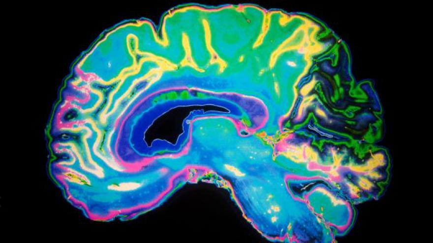Video Vědec Syka: Mozek je nejsložitější organizovaná hmota ve vesmíru