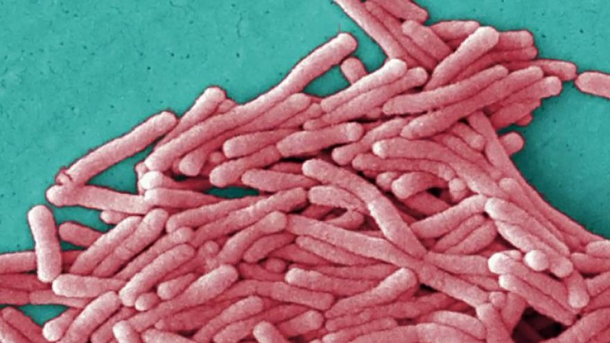 Video Legionella