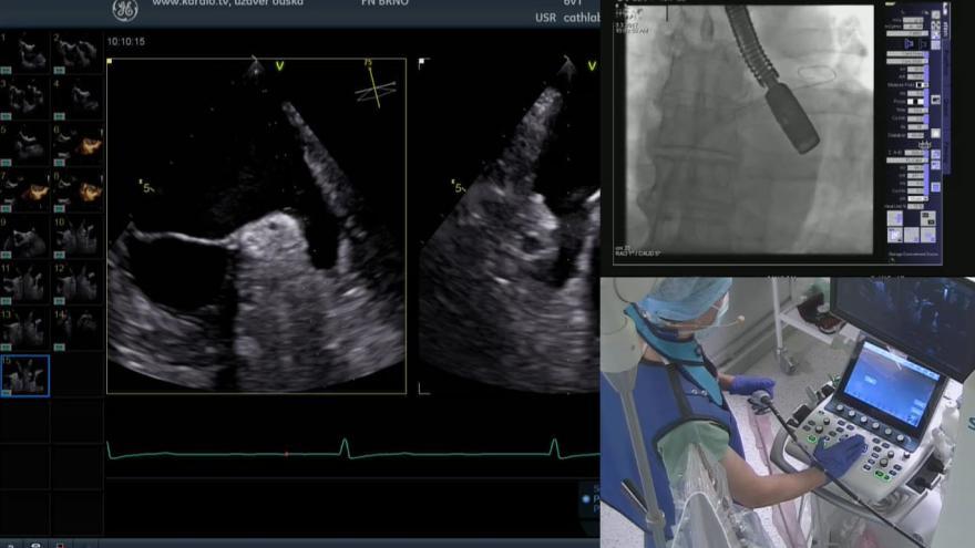 Video Operace srdce