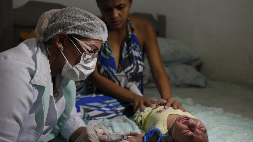 Video Zika skutečně způsobuje mikrocefalii