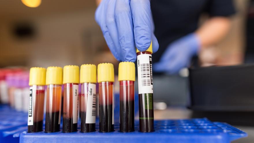 Video Události: Devět pacientů má po operaci ve Frýdlantu otravu krve