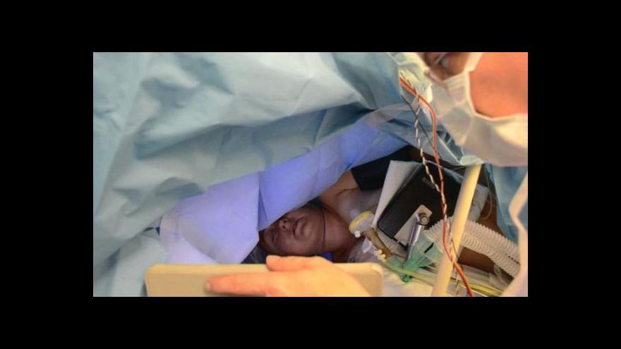 Video Unikátní operace mozku při vědomí