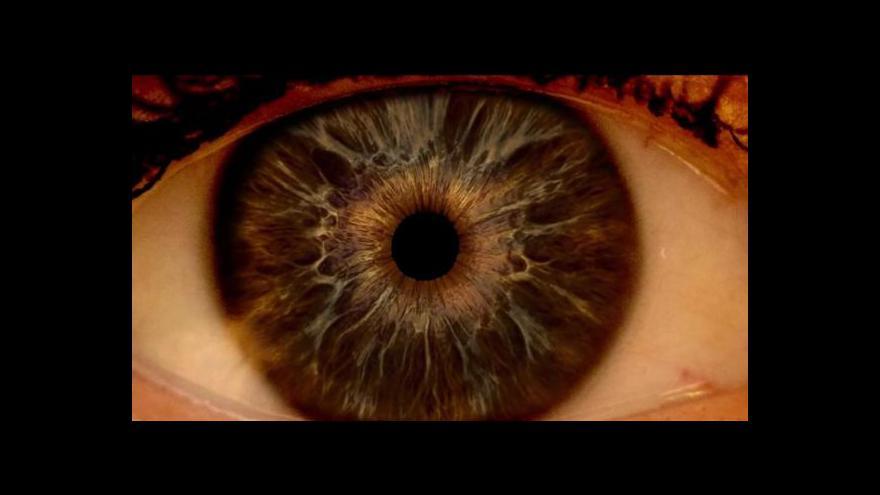 Video Události: Operace očí není vhodná pro každého
