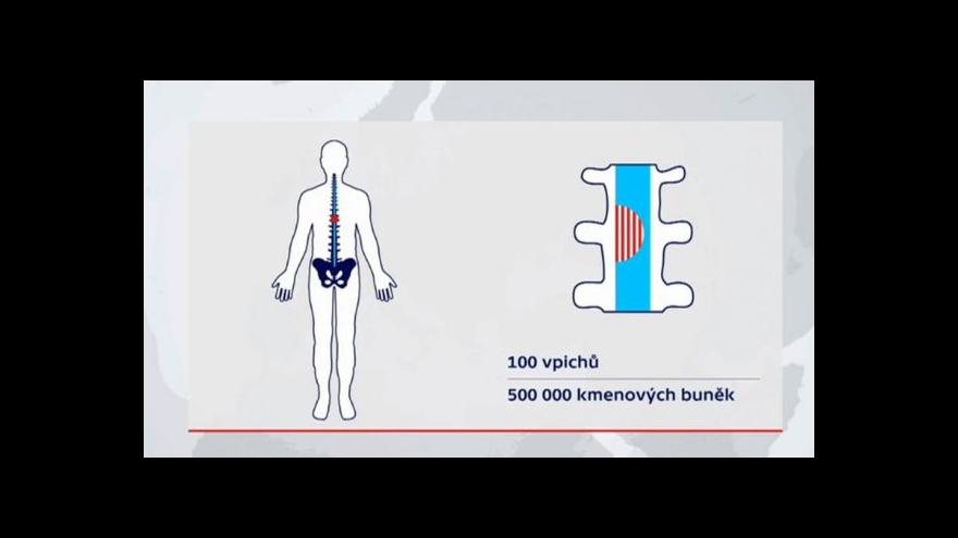 Video Kmenové buňky pomohly Polákovi znovu chodit
