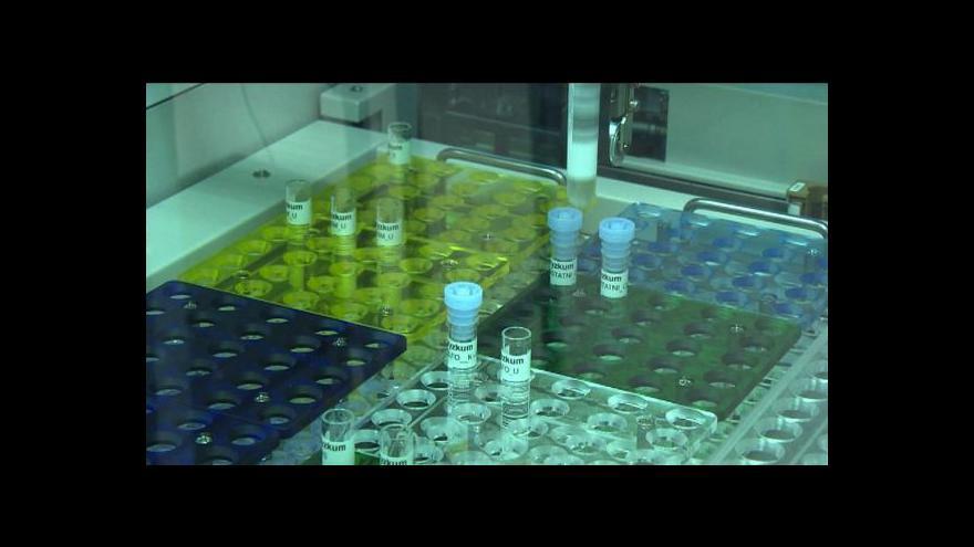 Video Rychleji a levněji – Plzeňská nemocnice má novou laboratoř