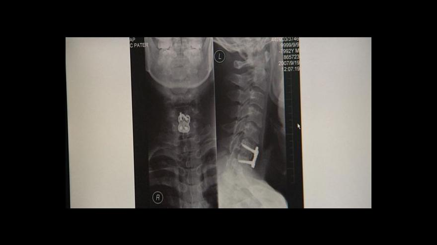 Video Zbytečná zranění s doživotními následky