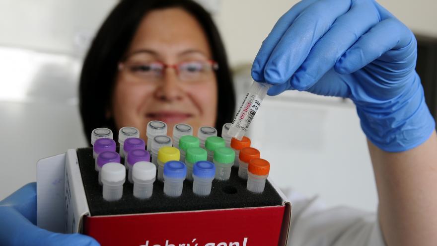 Video Události ČT: Noví dárci kostní dřeně mohou zpestřit registr