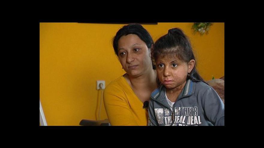 Video Žhářský útok ve Vítkově pět let poté