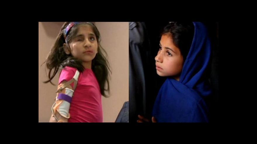 Video Horizont: Afghánky Šabíbí a Nachma si prošly peklem