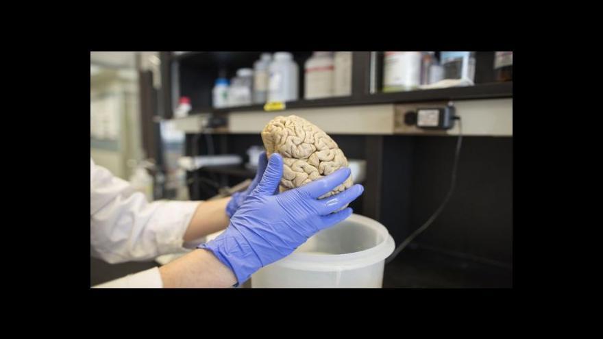 Video Lůžka pro nemocné Alzheimerem nestačí čím dál víc