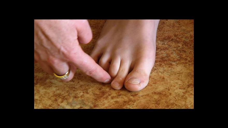 Video Ploché nohy či vbočené palce trápí každého třetího školáka