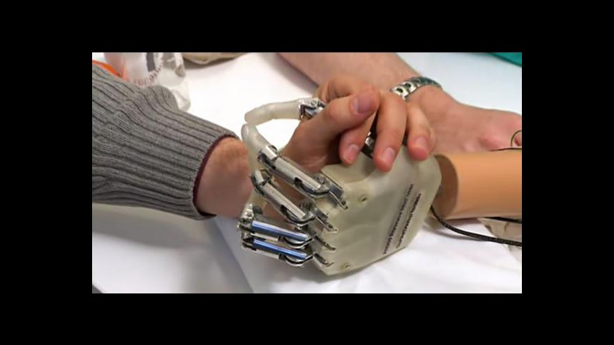Video Horizont 24 o prototypu bionické ruky