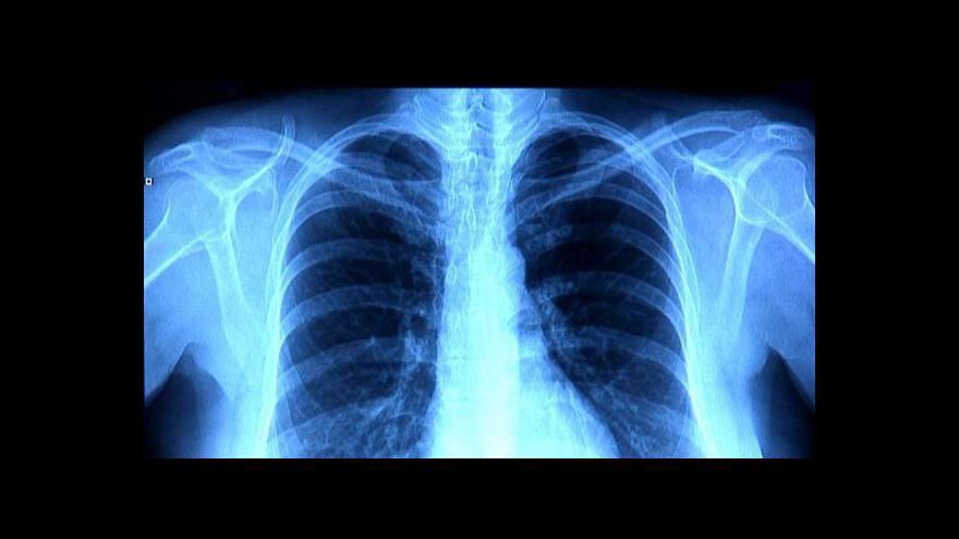 Video Za zhoubný plicní nádor většinou může kouření