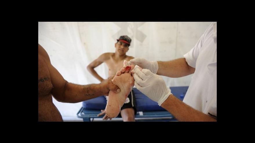 Video Piraně zranily v Argentině desítky lidí