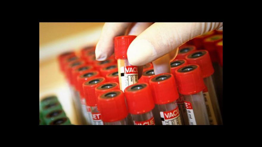 Video Počet nakažených HIV se v ČR stále zvyšuje