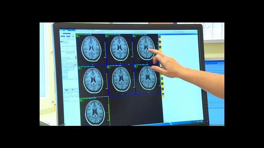 Video Rozhovor s Janou Vojáčkovou o registru pacientů s roztroušenou sklerózou