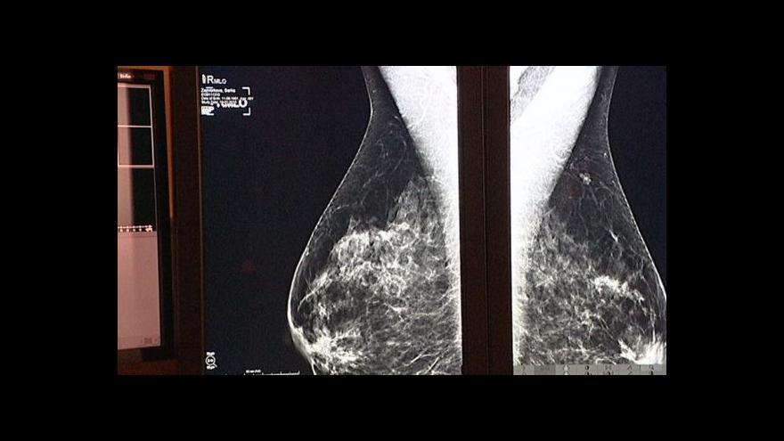Video Akce Plaveme prsa upozorňuje na důležitost prevence rakoviny prsu