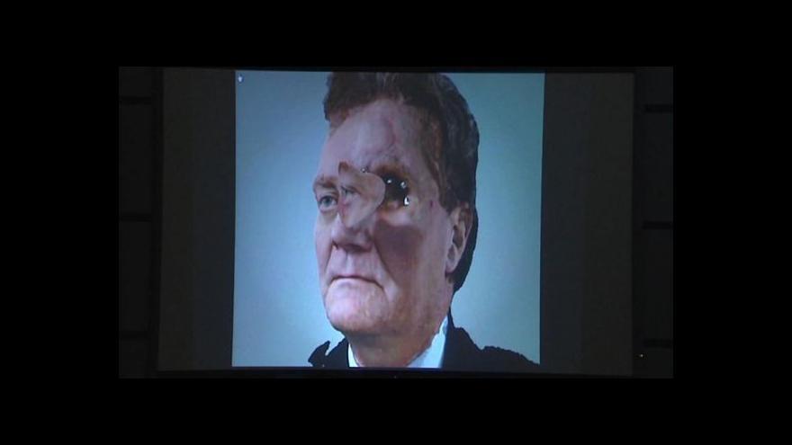 Video Pacient má díky epitéze novou část obličeje