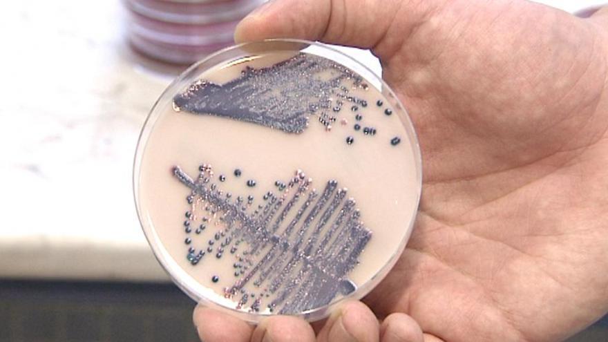 Video Rozhovor o bakteriální rezistenci