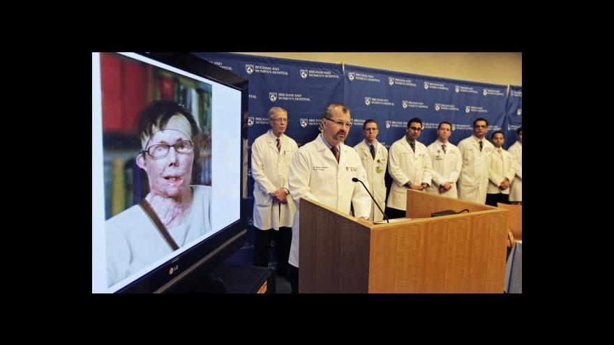 Video Veřejnosti se ukázala další Pomahačova pacientka