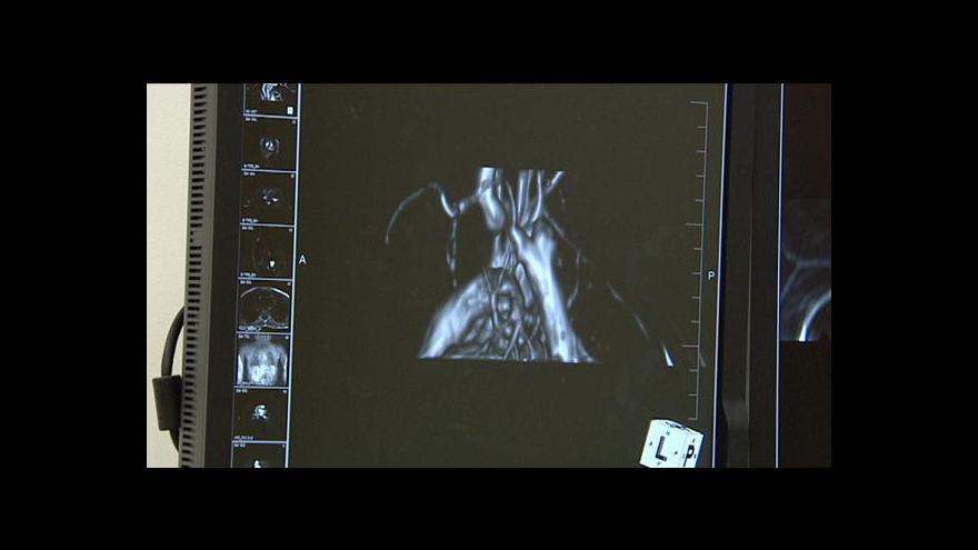 Video Reportáž Terezy Stárkové o vyšetření srdce