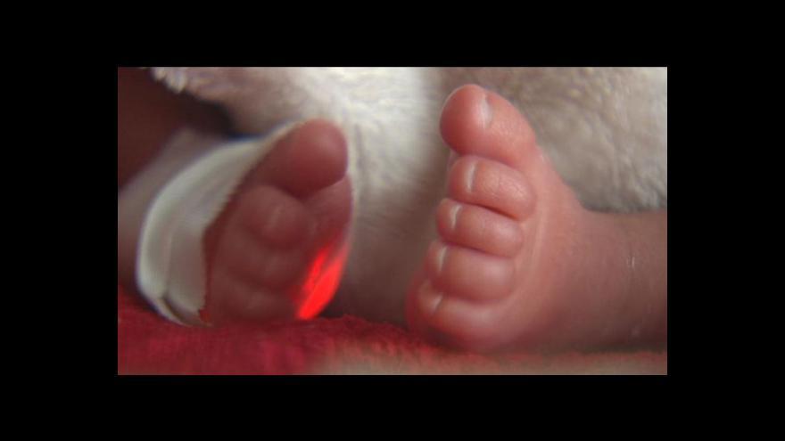Video Operace plodu v těle matky tématem Událostí
